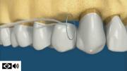 uso de fio dental em pontes fixas