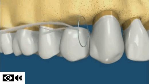 Passa-fio conduz o fio dental na parte interna de uma ponte fixa