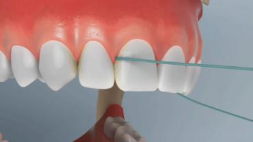 uso de fio dental em dentes superiores