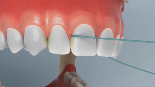 Veja como utilizar o fio dental nos dentes superiores