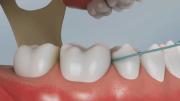 uso de fio dental em dentes inferiores