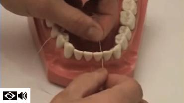 uso de fio dental – demonstração em modelo
