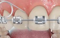 Como usar fio dental com aparelho ortodôntico