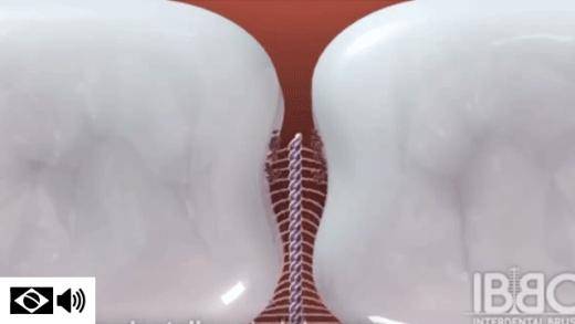 Escova interdental esfregando no espaço entre os dentes e removendo a sujeira presa nas furcas