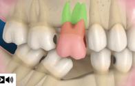 Perda de dentes – graves consequências