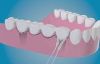 TePe Bridge & Implant Floss