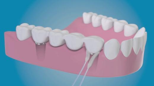 O super-floss TePe Bridge & Implant Floss é ideal para a limpeza de implantes, pontes fixas e aparelhos ortodônticos