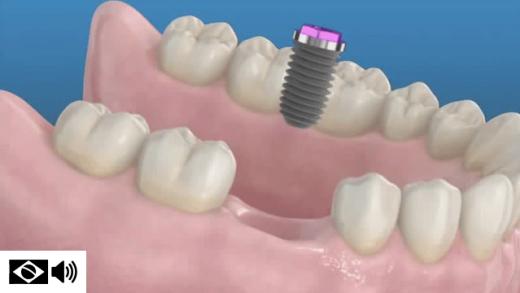 Implantes dentais substituem dentes perdidos, ao implantar-se uma raiz artificial ao osso