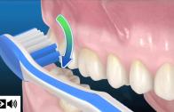 Como escovar os dentes: técnica do rolo