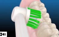 Como usar a escova de dente elétrica