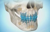 Nascimento dos dentes (vista oblíqua)