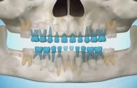 Nascimento dos dentes (vista panorâmica)