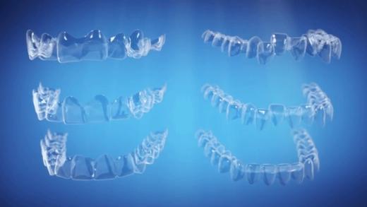 Conheça mais sovre os aparelhos alinhadores transparentes Invisalign