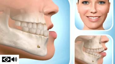 O papel da ortodontia