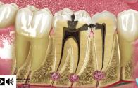 Cárie e restauração dentária