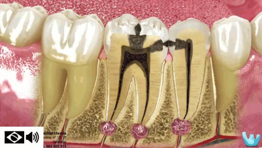 cárie e restauração dental