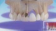 Implante dentário ou ponte fixa?