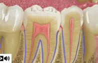 O periodonto e a doença periodontal