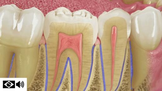 A falta de higiene correta colabora para o surgimento da doença periodontal, que afeta a raiz dos dentes, os ossos e as gengivas, causando assim um grande estrago na saúde e na estética da boca
