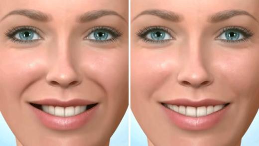 Estética bucal obtida com o uso de aparelho ortodôntico autoligado versus aparelho ortodôntico convencional
