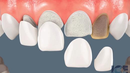 Facetas de porcelana sendo aplicadas em dentes lascados, quebrados e escurecidos