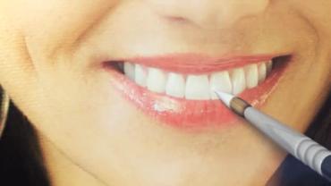 Faceta laminada e lente de contato dental