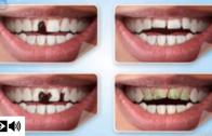 Como escolher um tratamento dentário estético?