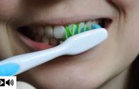 Como escovar os dentes sem causar abrasão dentária
