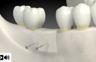 Tipos de enxerto ósseo dentário