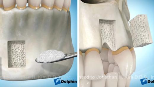Enxerto ósseo dentário em bloco na maxila com osso removido da mandíbula