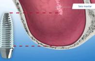 levantamento de seio maxilar