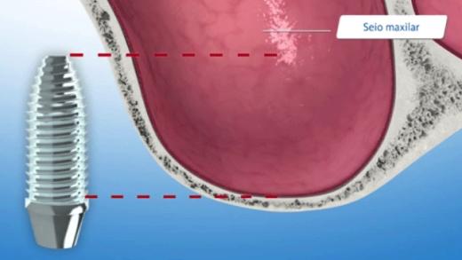 Levantamento de seio maxilar para se obter a quantidade de osso necessária para um implante osseointegrado