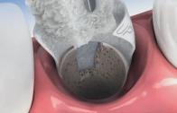 Preservação óssea após extração dentária