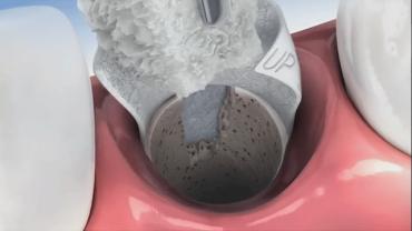 preservação óssea após extração