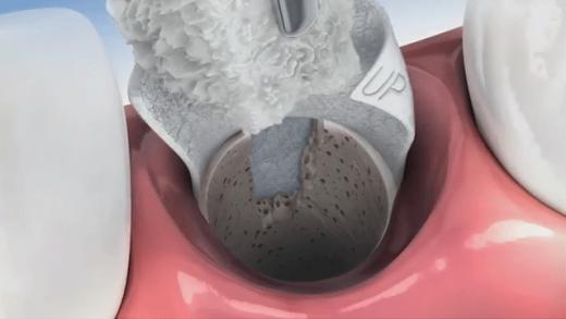 Tratamento de preservação óssea após extração dentária OU Tratamento de preservação óssea após extração dentária para permitir a instalação de implante dentário