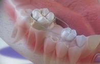 o mantenedor de espaco previne dentes encavalados