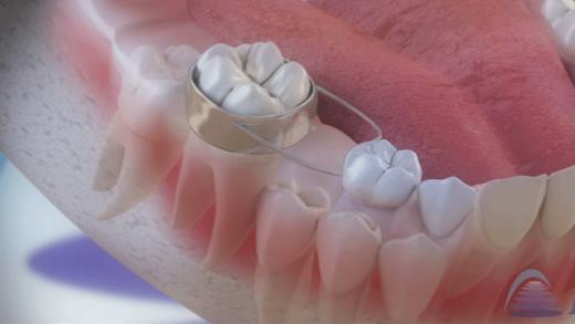 O mantenedor de espaço previne dentes encavalados