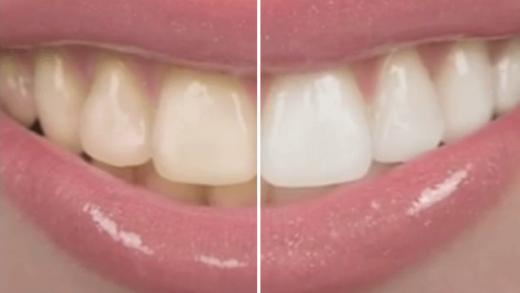 Sorriso antes e depois de clareamento dental